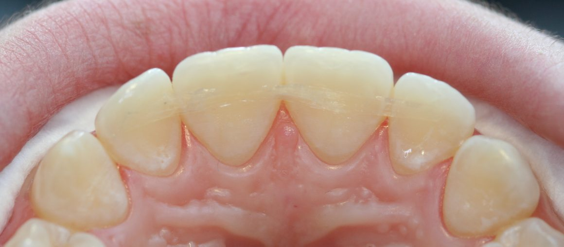 Шинирование зубов